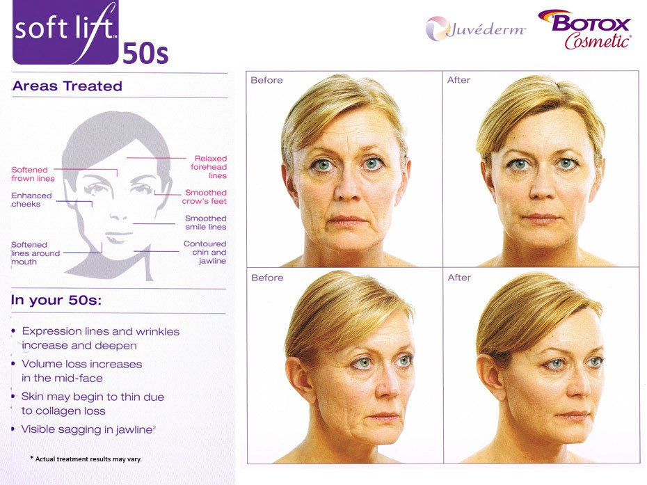 soft lift Results Botox and Juvederm