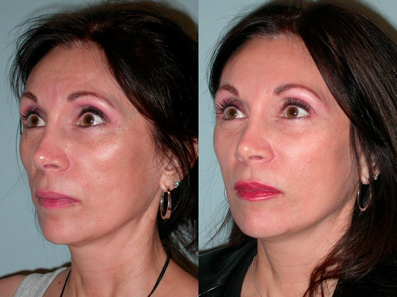 Sculptra before and after lady