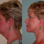 Facelift and Neck Lift before and after on a woman