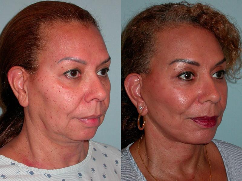 Facial Implants - Plastic Surgery Santa Rosa | Artemedica