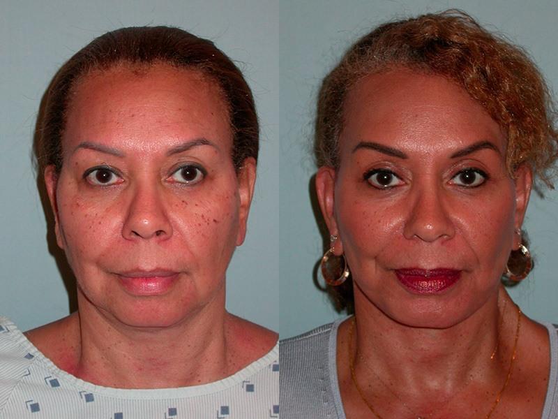 plastic sonoma Facial surgery reconstructive