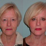 Facelift and Neck Lift before and after Sonoma County