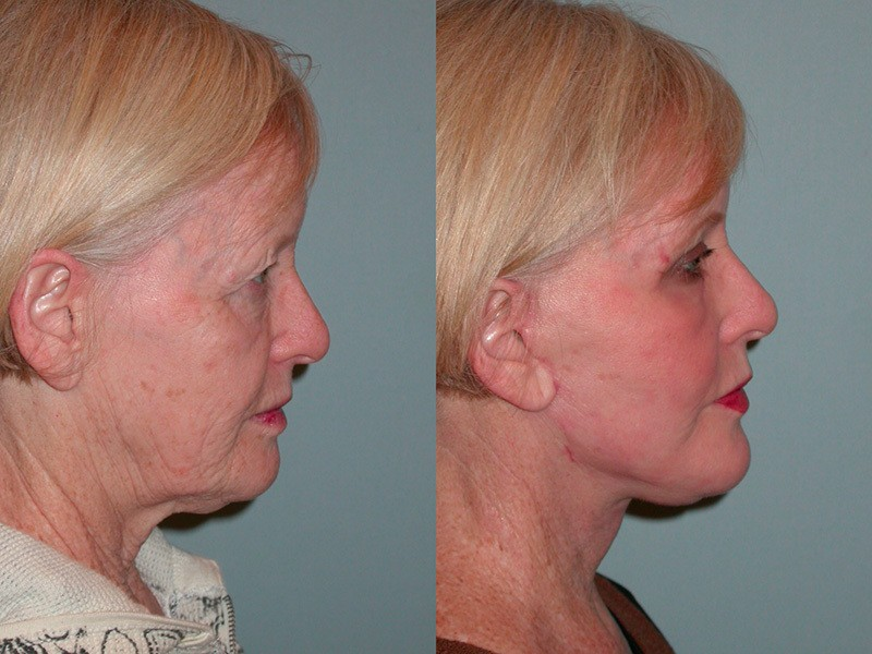 Lower Face & Neck, Upper & Lower Lids, Full Face Laser