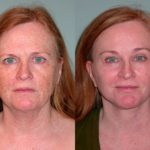 Brow Lift before and after Santa Rosa
