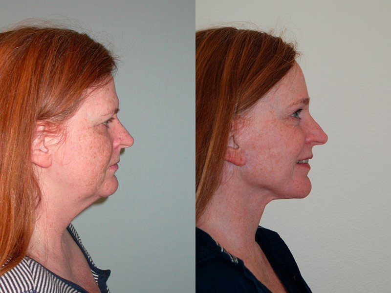 Lower Face & Neck, Brow, Full Face Laser Resurfacing.