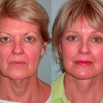 Facelift and Neck Lift before and after woman