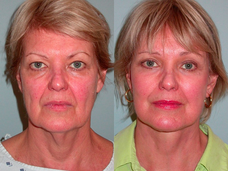 Lower Face & Neck, Upper & Lower Lids, Brow