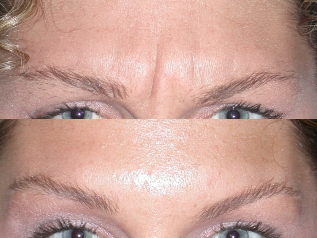 botox before and after eyebrows