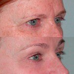 Brow Lift before and after on woman