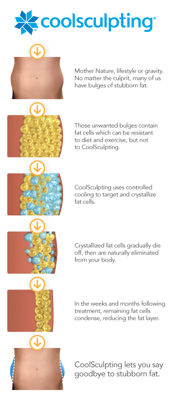 coolsculpting freezes fat