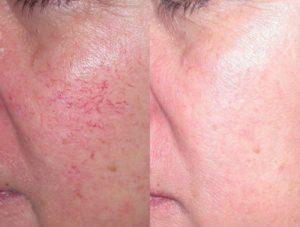 laser-treatments-santa-rosa-veins-rosacea-bbl-ipl-fraxel