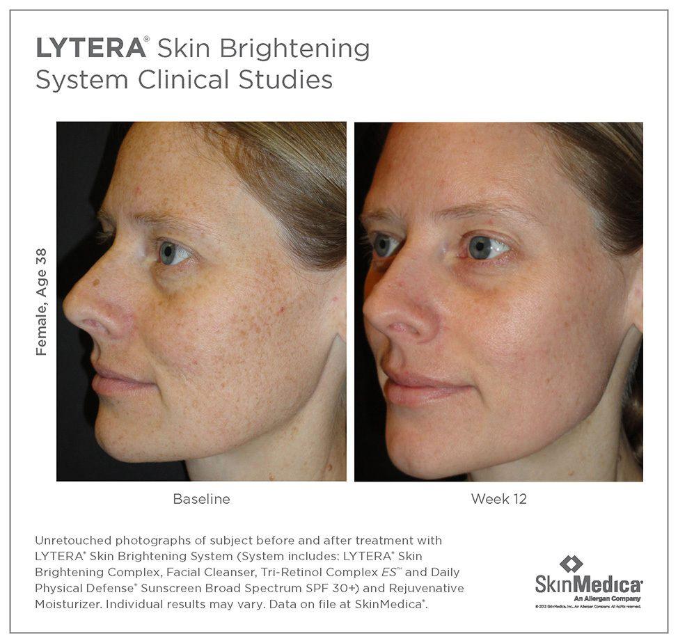 Skin Care Santa Rosa