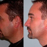 Facelift and Neck Lift before and after on a man