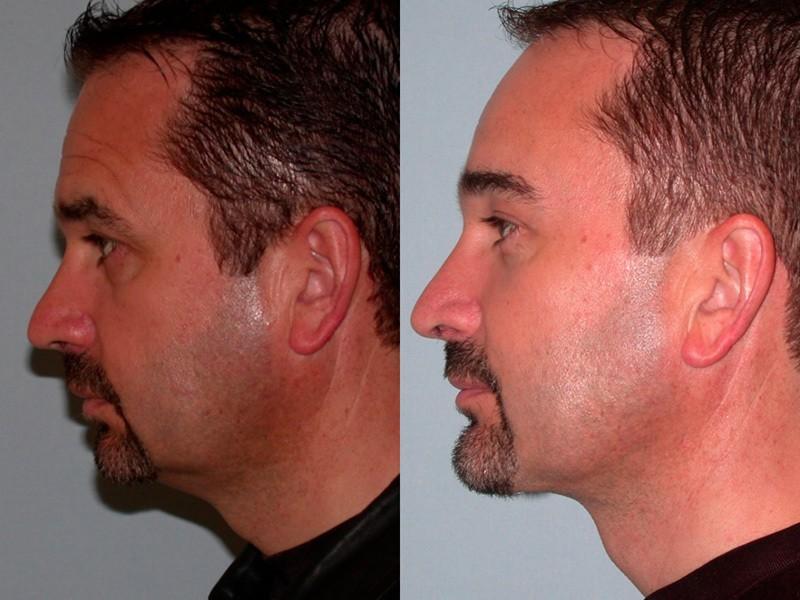 Facelift Amp Neck Lift Plastic Surgery Santa Rosa Artemedica