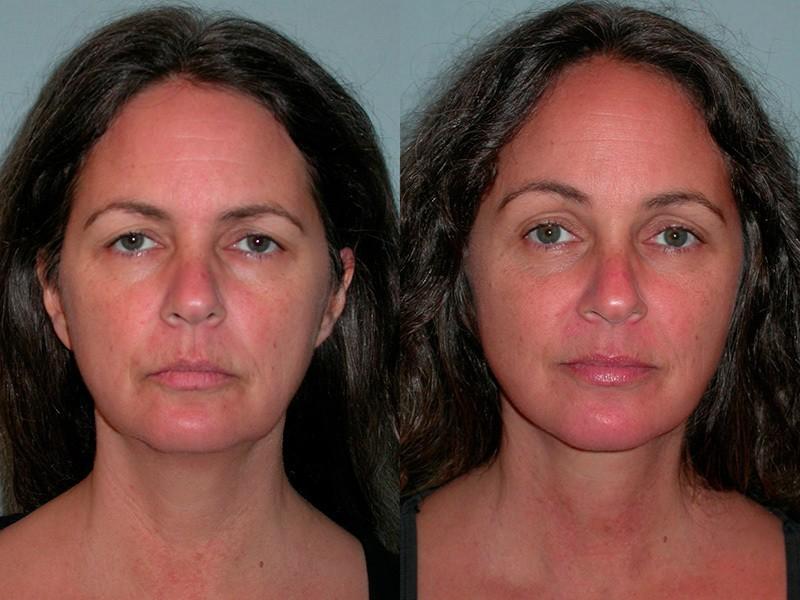 Brow Lift Santa Rosa - Facial Cosmetic Surgery | Artemedica