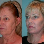 Facelift and Neck Lift before and after