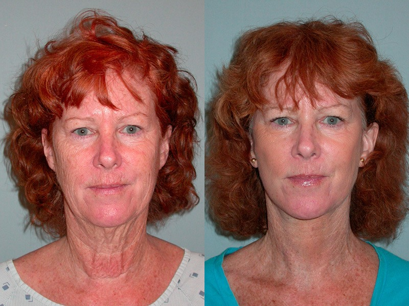 Lower face and neck, full face laser resurfacing