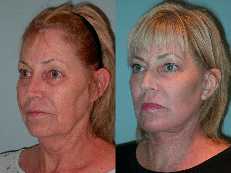 Lower face and neck, full face laser