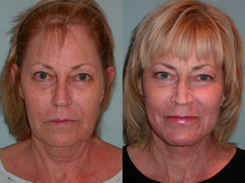 Facial resurfacing before and after can consult