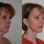 Facelift and Neck Lift before and after Santa Rosa