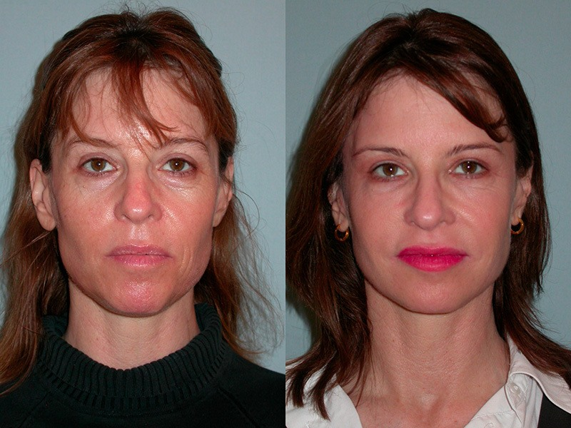 Sculptra before and after