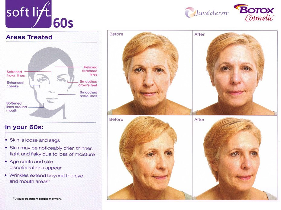 Soft Lift Liquid Facelift in your 60s