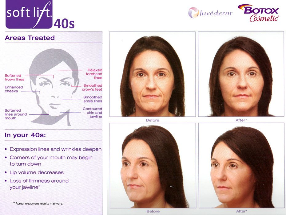 softlift liquid facelift in your 40s