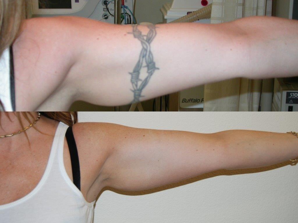 laser-tattoo-removal-santa-rosa-sonoma-marin-napa-healdsburg