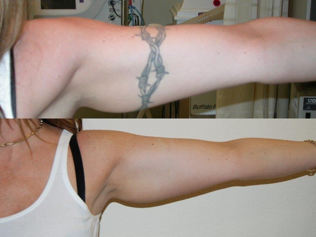 Before and after woman's laser tattoo removal