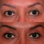 Brow Lift before and after close up