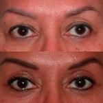 Eyelid Surgery before and after Santa Rosa