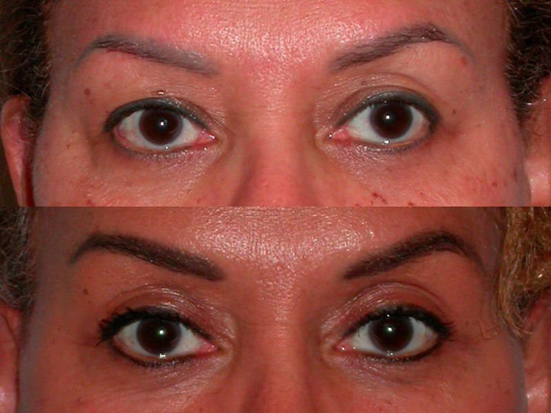 Upper eye lids and eye brow