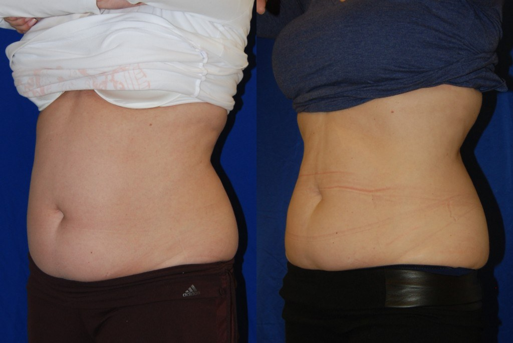 coolsculpting in santa rosa