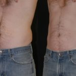 coolsculpting before and after stomach area