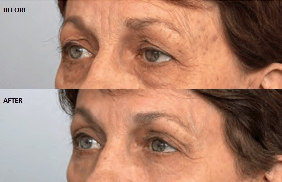 Cosmetic Eyelid Surgery Before and After