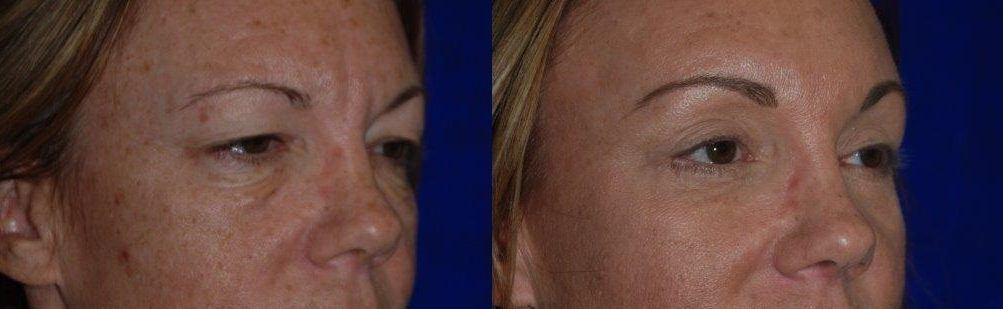 Facial procedures sonoma