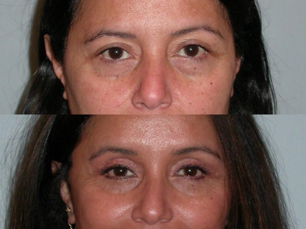 eyelid surgery bleph santa rosa