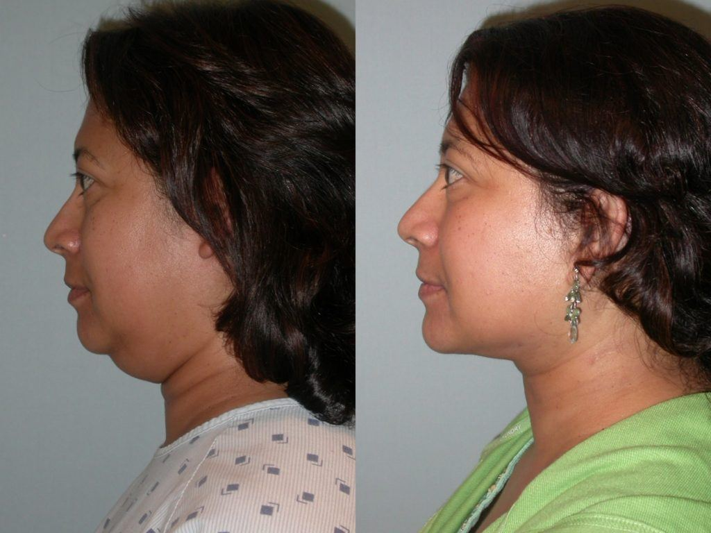 Cosmetic facial rosa santa surgery