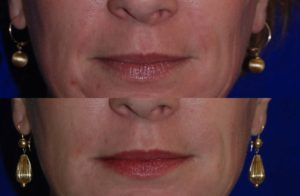Injectable Fillers before and after
