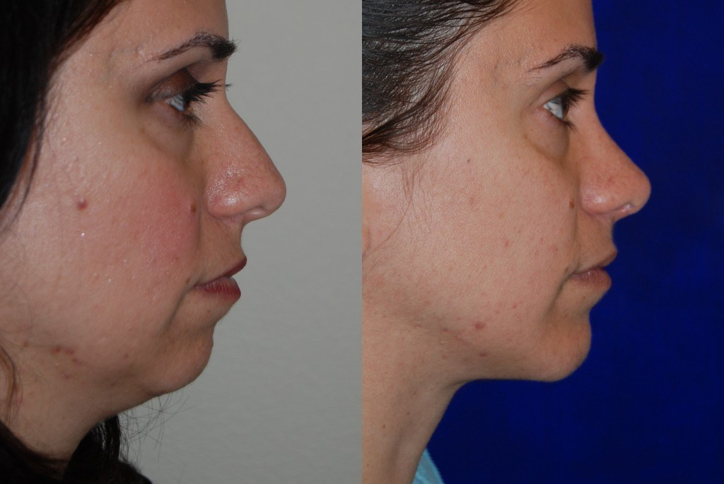 rhinoplasty-santa-rosa-nose-job