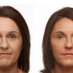 Liquid Facelift before and after woman