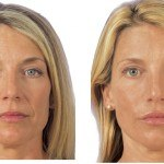 Liquid Facelift before and after Santa Rosa