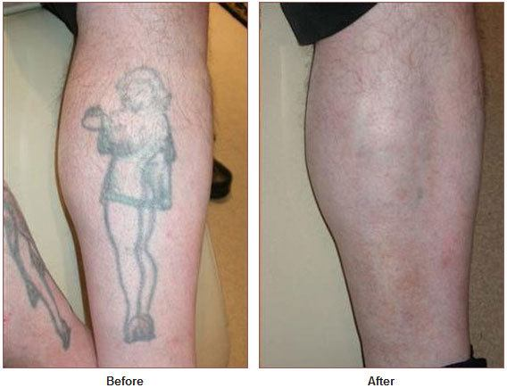 Tattoo removal isn't the only goal that can be achieved with laser ...