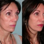 Sculptra before and after woman