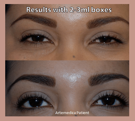Latisse before and after Artemedica's 2014 Lash Flash