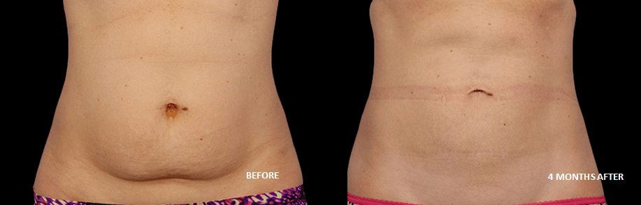 Coolsculpting on woman's stomach
