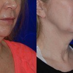 thermi smooth before and after