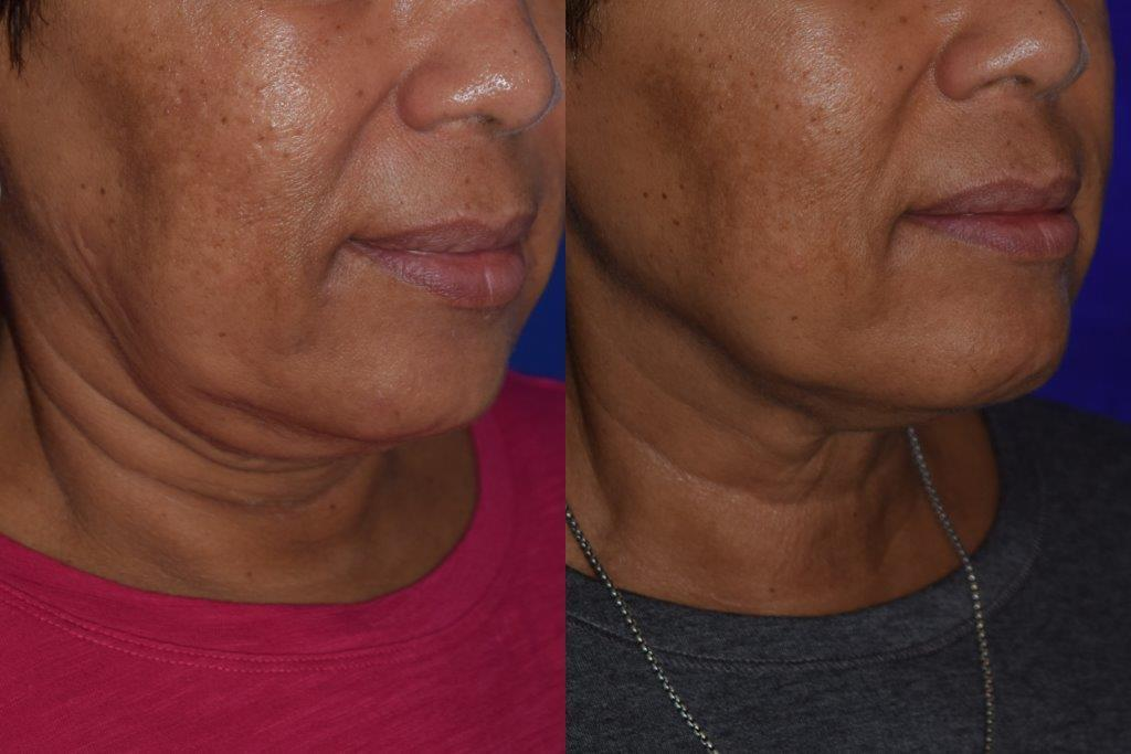 before and after woman's kybella injections to address double chin fat