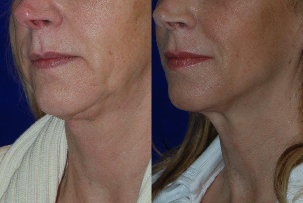 kybella-santa-rosa-before-after-chin-reduction-injections-plastic-surgery (3)