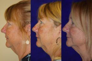 Kybella Santa Rosa Double Chin Reduction Artemedica